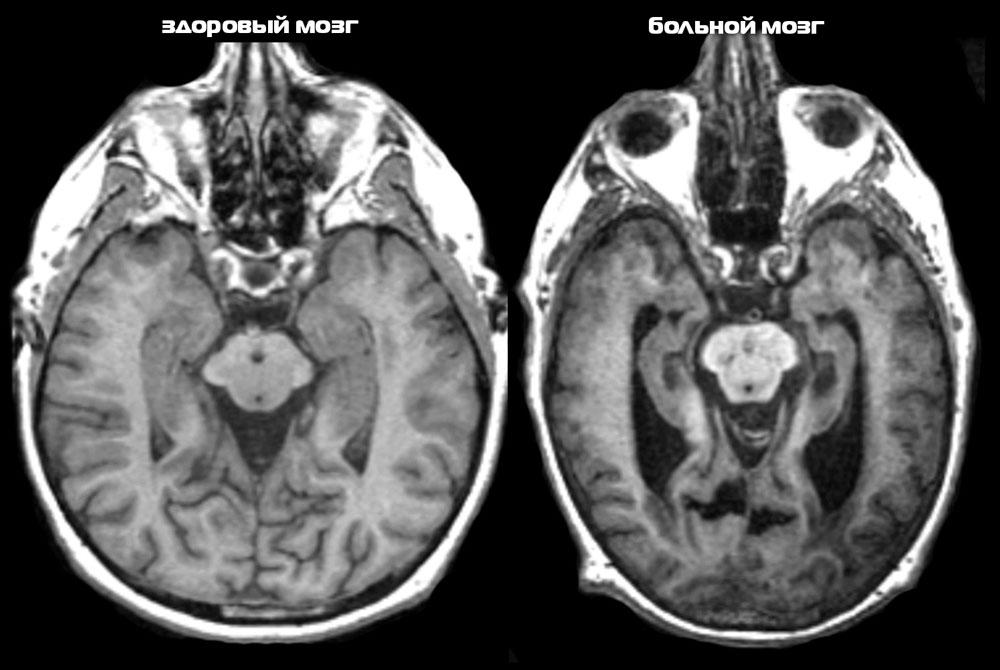 Альцгеймер: новое показание МРТ